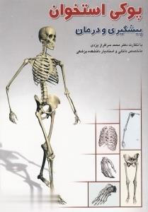 پوكي استخوان (پيشگيري و درمان)